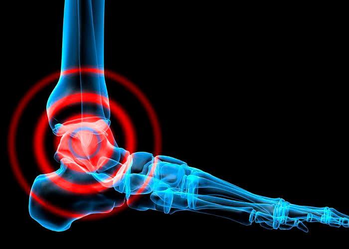 Lesión en el pie